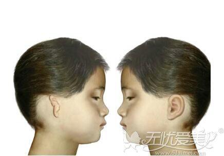 小耳畸形矫正