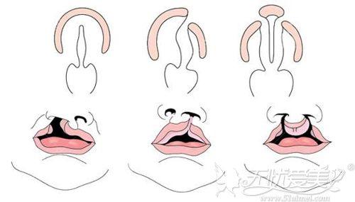 唇腭裂程度不同