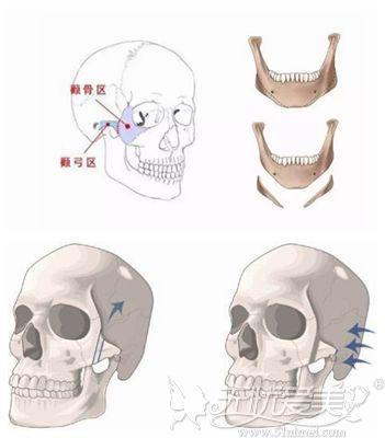下颌角和颧骨内推术