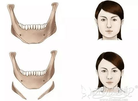 长曲线下颌角整形前后