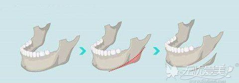 长曲线下颌角整形手术过程