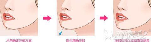 玻尿酸丰下巴手术过程