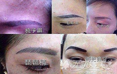 纹眉失败后的几种情况