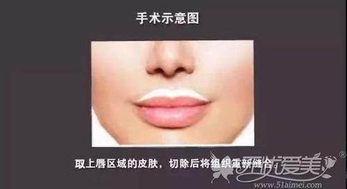 切开上唇皮肤缩短人中方法