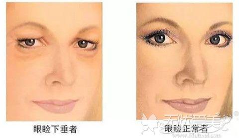 上眼皮松弛和正常眼皮对比