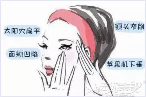 面部脂肪填充容易填得过假的部位