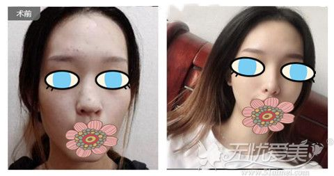 嘉兴曙光曹海峰3D分段式美鼻案例