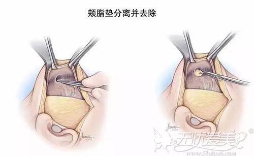 去颊脂垫的切口位置