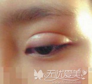 双眼皮术后有肉条感