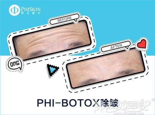 botox除皱去川字纹案例