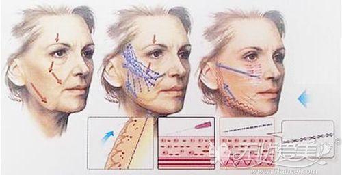 面部线雕的原理