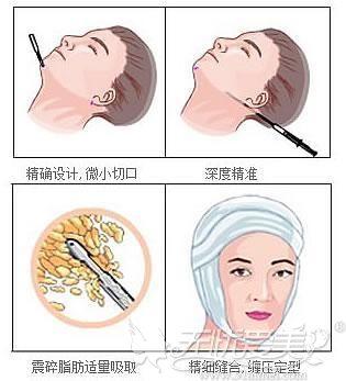 面部脂肪吸脂术手术过程