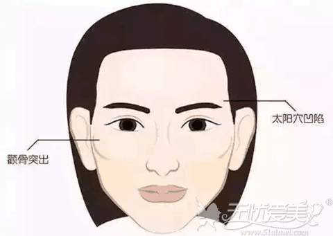 面部凹陷容易显得人比较老态