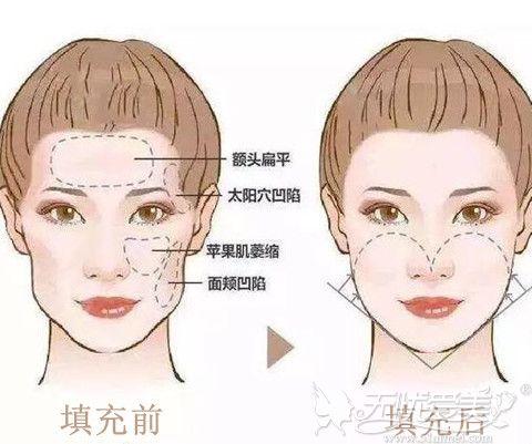 面部自体脂肪填充前后