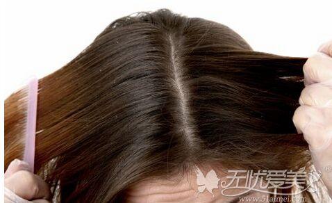 毛发移植后头皮痒