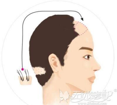 头发移植的原理
