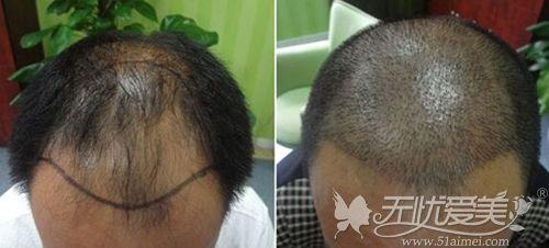 头发移植恢复过程图