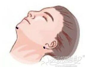 面部吸脂和双下巴吸脂针眼分布