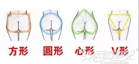 常见的不满意臀部形态