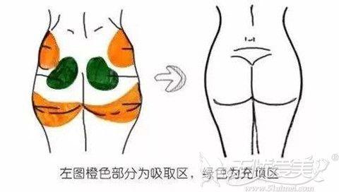 自体脂肪移植丰臀使臀部更加丰满