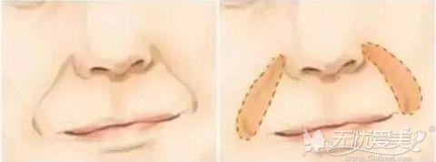 三八纹鼻唇沟纹 法令纹