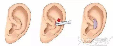 耳软骨隆鼻从耳腔处取软骨组织进行隆鼻手术