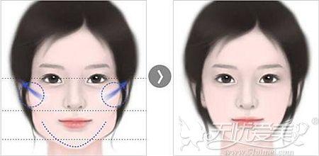颧骨内推和下颌角整形后的效果对比