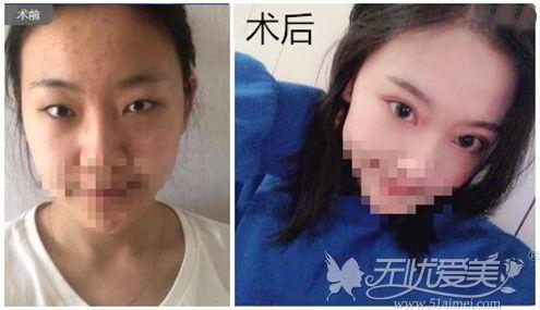 郑州东方整形双眼皮真人案例