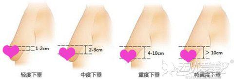 胸部下垂的几种程度之分