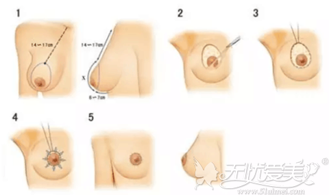 乳房悬吊手术过程