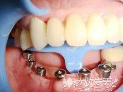 半口全口牙齿缺损传统的种植牙方式