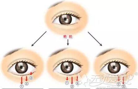 眼睑下调手术