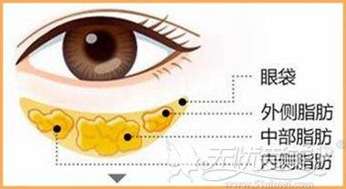 眼综合之去眼袋手术