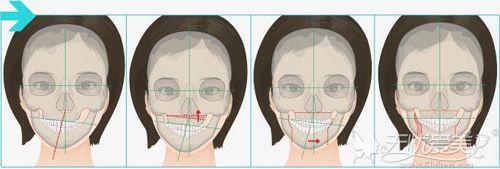 正颌手术解决大小脸问题