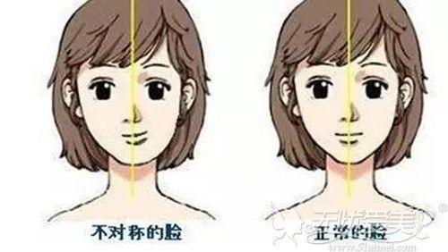 大小脸会造成下颌角歪斜