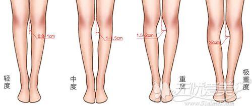 o型腿的重度区分
