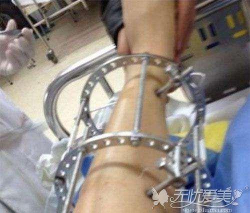 手术矫正o型腿后支架固定