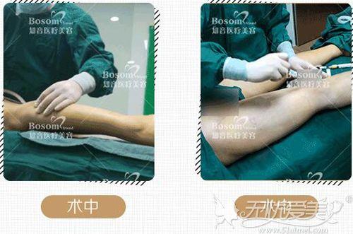 北京知音自体脂肪矫正o型腿手术图片