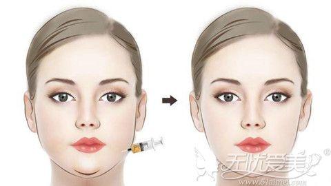 面部吸脂术前术后效果对比