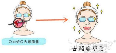 去颊脂垫术前术后效果对比