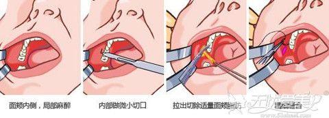 去颊脂垫手术过程