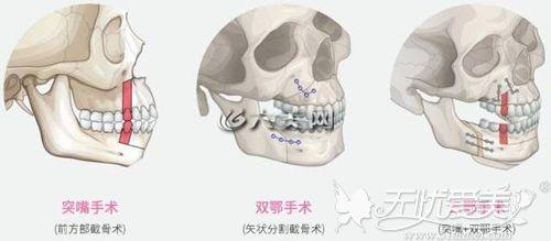 双颚手术的分类