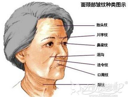 面部除皱微整形的项目