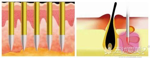黄金微针治疗原理