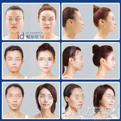韩国ID朴相熏V-LINE轮廓4件套案例