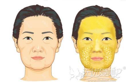 面部可以做脂肪填充的部位