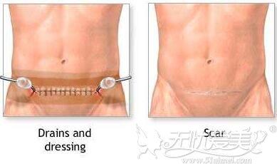 腹壁成形术的位置