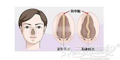鼻中隔偏曲、歪斜的情况