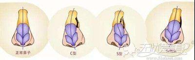 鼻中隔偏曲、歪斜的多种类型