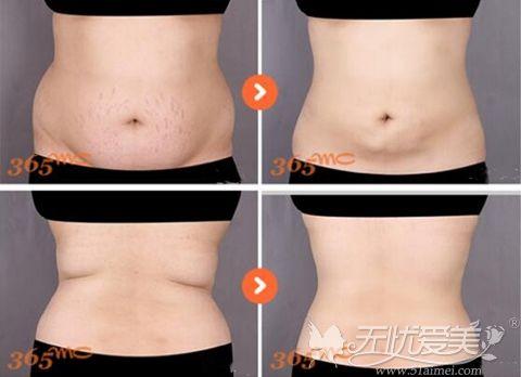 韩国365mc腰腹吸脂案例